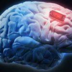 implantes cerebrales