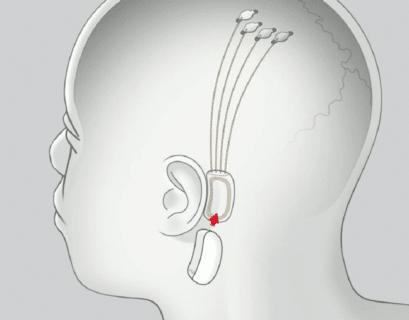 neuralink humanos
